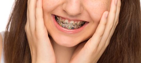 치아 교정 상식-여름방학에 교정을 많이 시작하는 이유