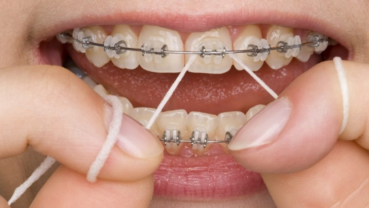 Flossing With Braces, How to Floss Teeth