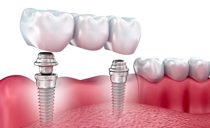 Dental Implants – Implant bridge