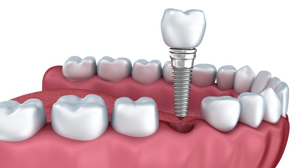 Dental Implant-Cosmetic