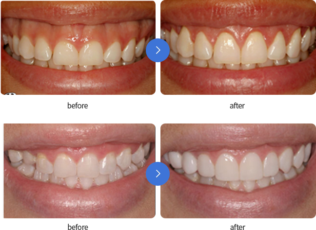치아 성형