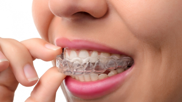 Invisalign – The Clear Alternative to Braces